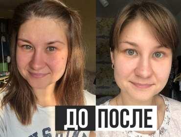 кетодиета улучшение кожи